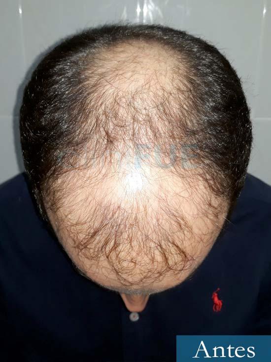 Marc 30 Tarragona trasplante capilar turquia antes 3