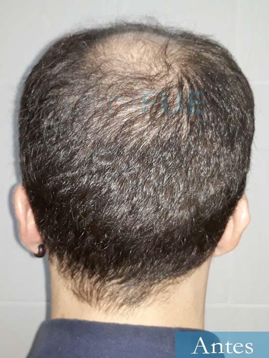 Marc 30 Tarragona trasplante capilar turquia antes 5