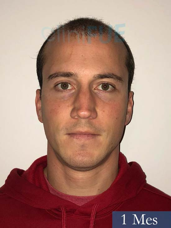 Miguel 31 años Barcelona trasplante capilar turquia 1 mes