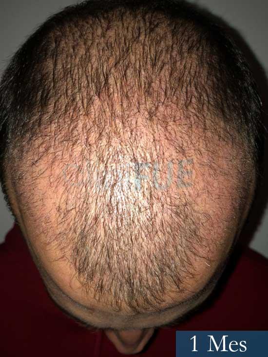 Miguel 31 años Barcelona trasplante capilar turquia 1 mes 2