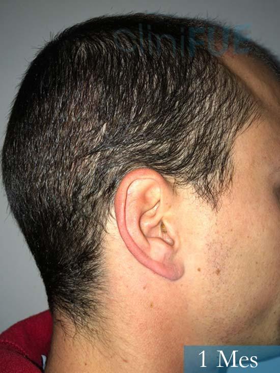 Miguel 31 años Barcelona trasplante capilar turquia 1 mes 3