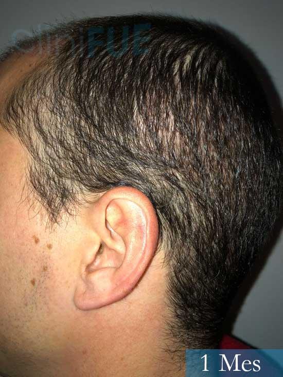 Miguel 31 años Barcelona trasplante capilar turquia 1 mes 4