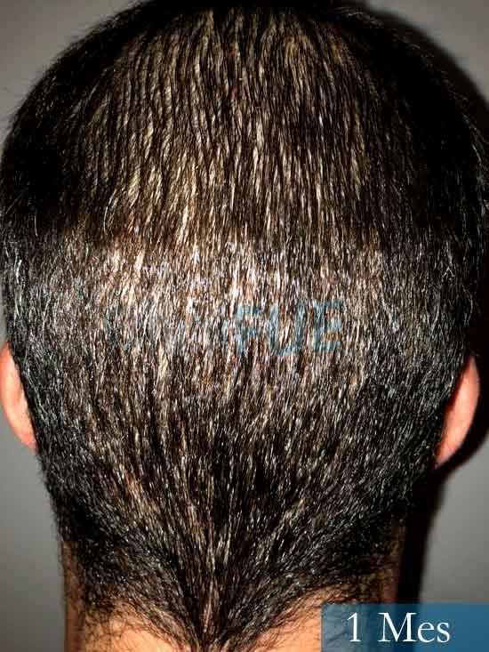 Miguel 31 años Barcelona trasplante capilar turquia 1 mes 5