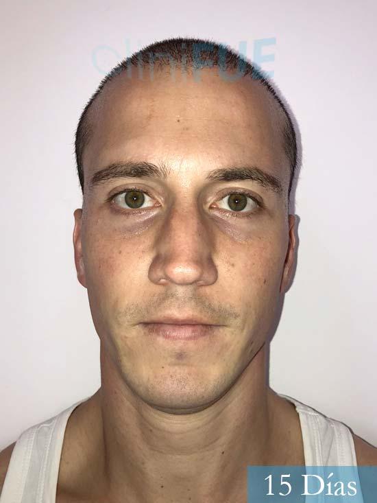 Miguel 31 años Barcelona trasplante capilar turquia 15 dias