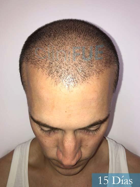Miguel 31 años Barcelona trasplante capilar turquia 15 dias 2
