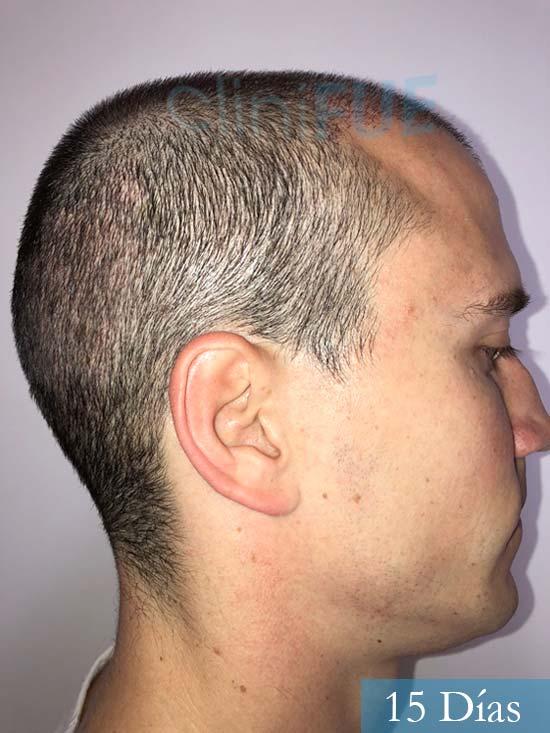 Miguel 31 años Barcelona trasplante capilar turquia 15 dias 3
