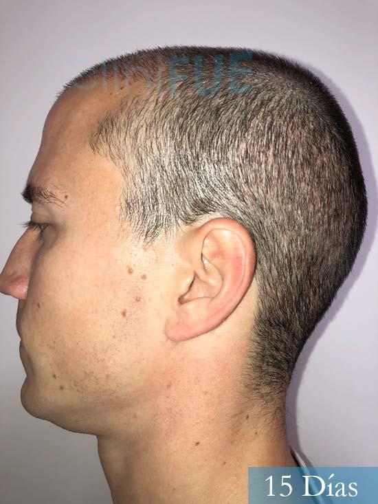 Miguel 31 años Barcelona trasplante capilar turquia 15 dias 4