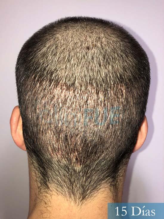 Miguel 31 años Barcelona trasplante capilar turquia 15 dias 5