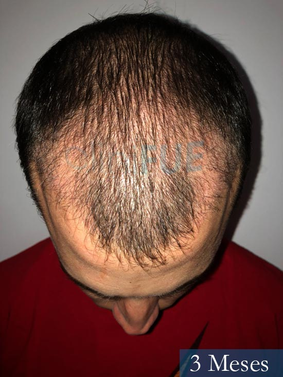 Miguel 31 años Barcelona trasplante capilar turquia 3 meses 2