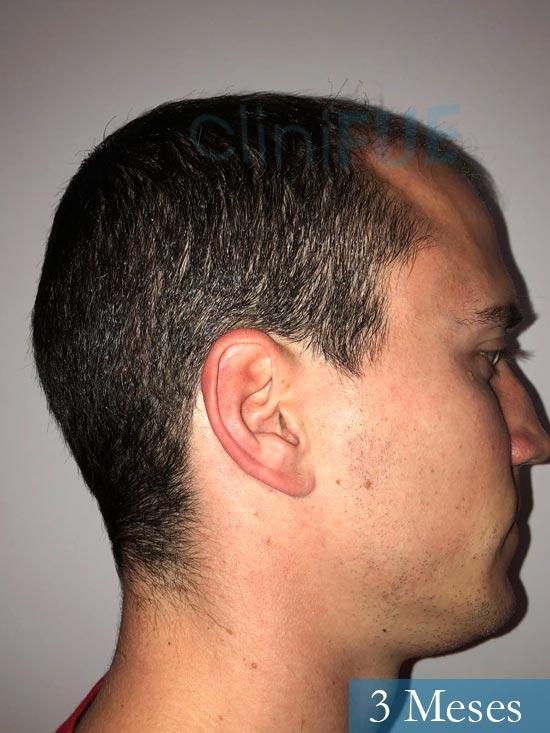 Miguel 31 años Barcelona trasplante capilar turquia 3 meses 3