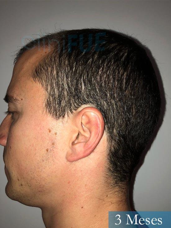 Miguel 31 años Barcelona trasplante capilar turquia 3 meses 4