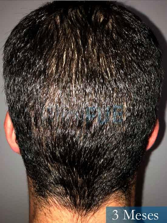Miguel 31 años Barcelona trasplante capilar turquia 3 meses 5