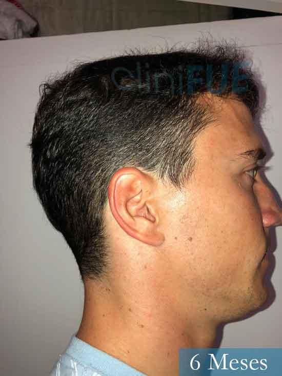 Miguel 31 años Barcelona trasplante capilar turquia 6 meses 3