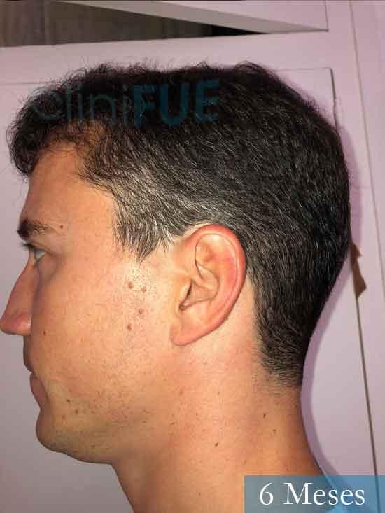 Miguel 31 años Barcelona trasplante capilar turquia 6 meses 4