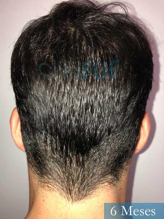 Miguel 31 años Barcelona trasplante capilar turquia 6 meses 5