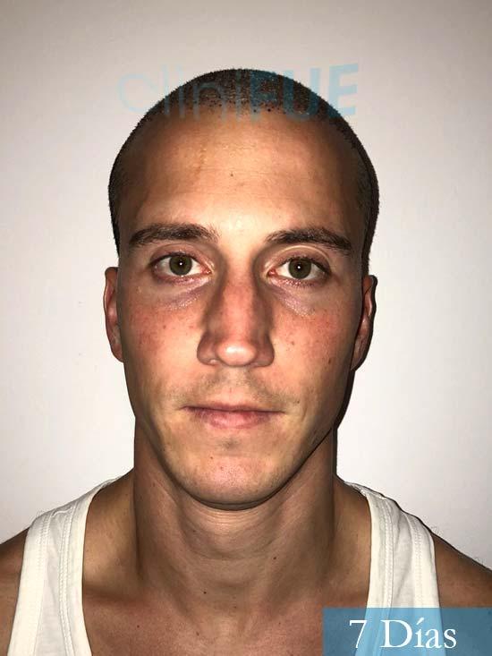 Miguel 31 años Barcelona trasplante capilar turquia 7 dias
