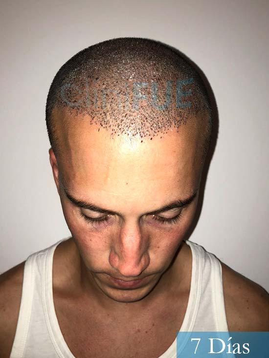 Miguel 31 años Barcelona trasplante capilar turquia 7 dias 2