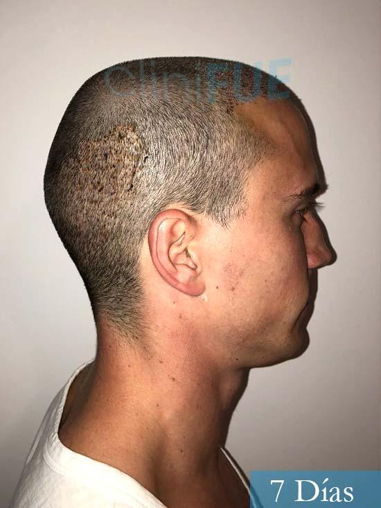 Miguel 31 años Barcelona trasplante capilar turquia 7 dias 3