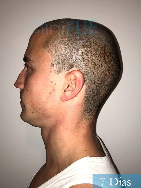 Miguel 31 años Barcelona trasplante capilar turquia 7 dias 4