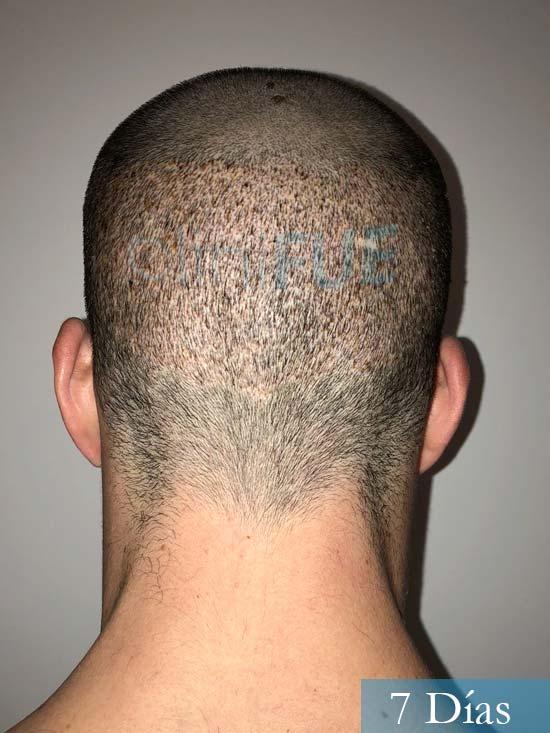 Miguel 31 años Barcelona trasplante capilar turquia 7 dias 5