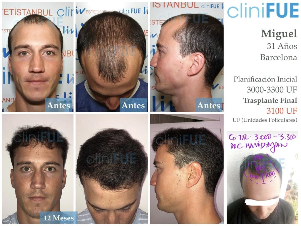Miguel 31 años Barcelona trasplante capilar turquia 6 meses