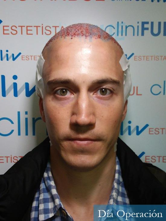 Miguel 31 años Barcelona trasplante capilar turquia dia operacion