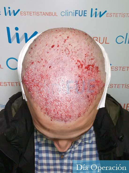 Miguel 31 años Barcelona trasplante capilar turquia dia operacion 2