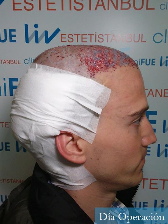 Miguel 31 años Barcelona trasplante capilar turquia dia operacion 3