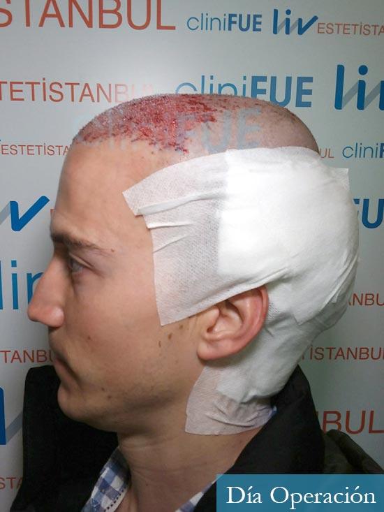 Miguel 31 años Barcelona trasplante capilar turquia dia operacion 4