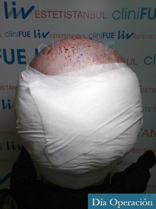 Miguel 31 años Barcelona trasplante capilar turquia dia operacion 5