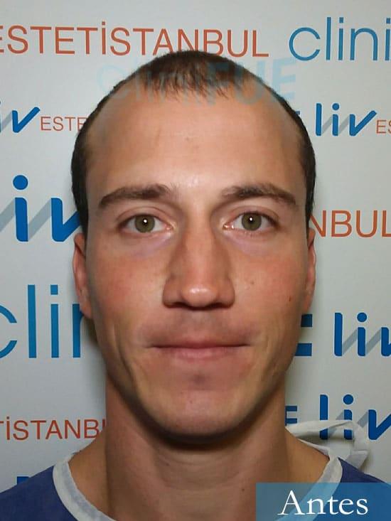 Miguel 31 años Barcelona trasplante capilar turquia dia operacion antes