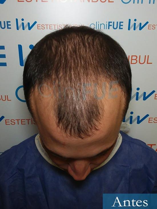 Miguel 31 años Barcelona trasplante capilar turquia dia operacion antes 2