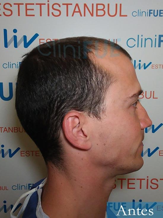 Miguel 31 años Barcelona trasplante capilar turquia dia operacion antes 3