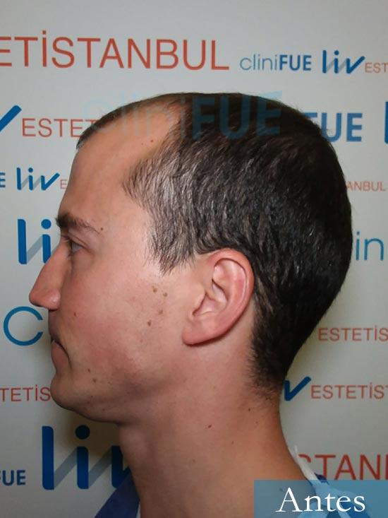 Miguel 31 años Barcelona trasplante capilar turquia dia operacion antes 4