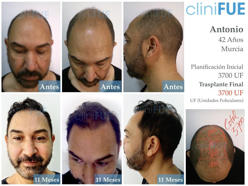 Antonio 42 Murcia trasplante capilar estambul