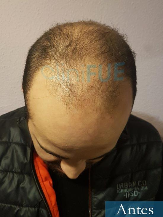 Oscar 34 Zamora trasplante capilar turquia dia operacion antes 2