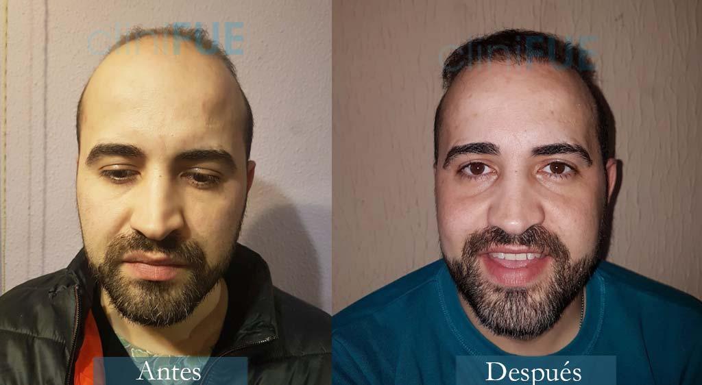 Trasplante capilar de Oscar 34 Años de Zamora con cliniFUE