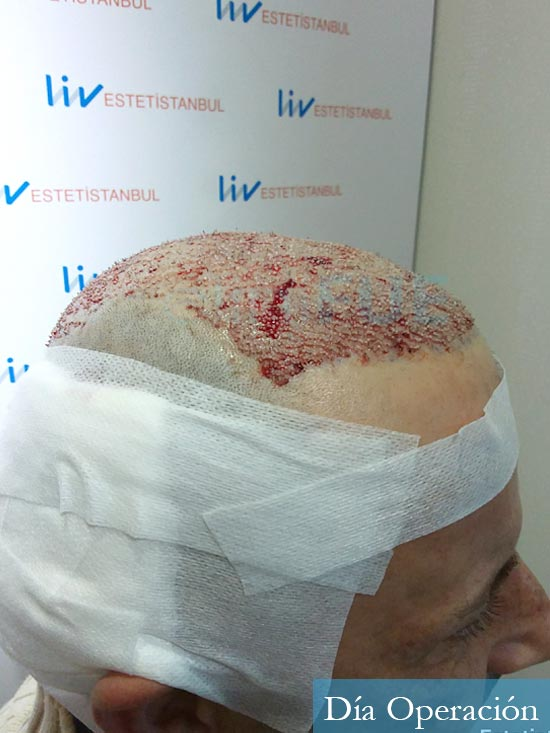 Victor 45 Castellon trasplante pelo dia operacion 3