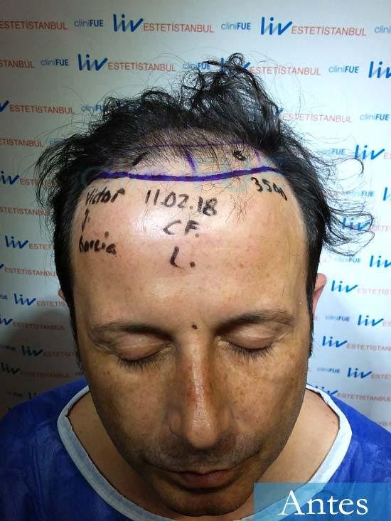 Victor 45 Castellon trasplante pelo dia operacion diseno