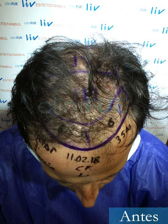 Victor 45 Castellon trasplante pelo dia operacion diseno 2