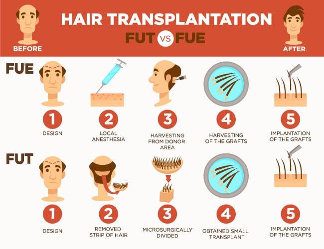 transplante método FUE vs FUSS