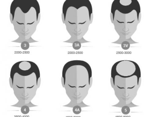 ¿Cómo se mide el grado de calvicie en el hombre y en la mujer?