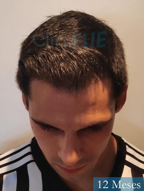 Aaron 26 Barcelona injerto de pelo 12 meses 2