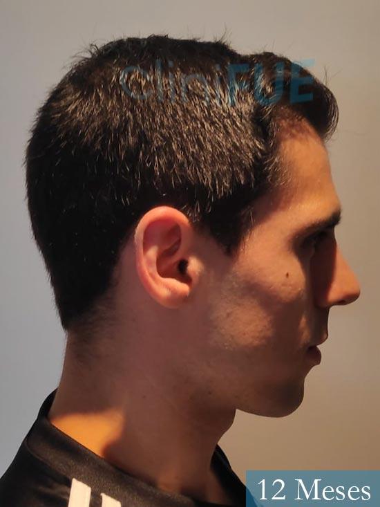 Aaron 26 Barcelona injerto de pelo 12 meses 4