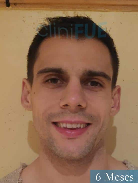Aaron 26 Barcelona injerto de pelo 6 meses