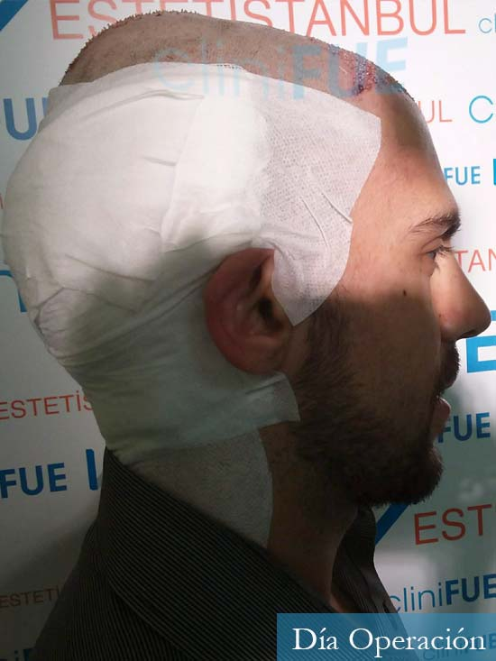 Aaron 26 Barcelona injerto de pelo dia operacion