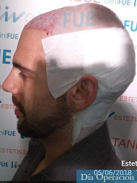Aaron 26 Barcelona injerto de pelo dia operacion 3