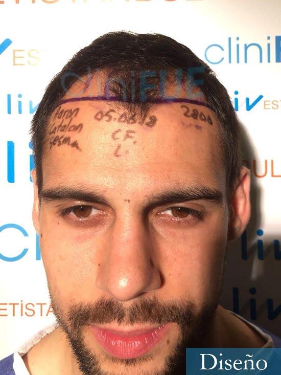 Aaron 26 Barcelona injerto de pelo dia operacion diseno
