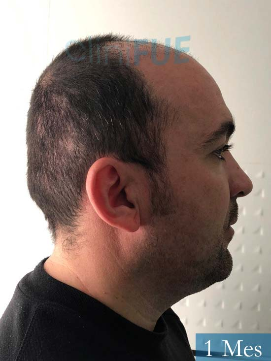 Angel Carlos 42 Caceres injerto de pelo dia operacion 1 mes 4