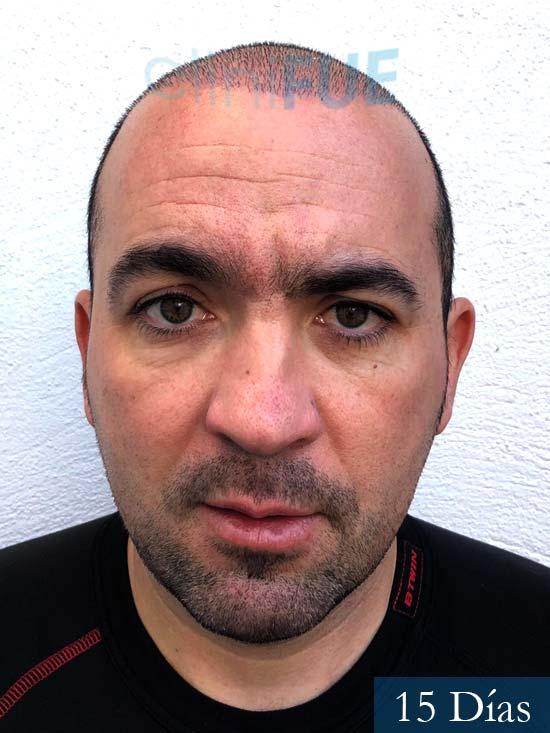 Angel Carlos 42 Caceres injerto de pelo dia operacion 15 dias